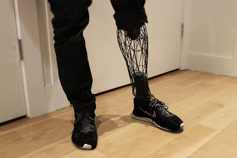 Médecine et impression 3D