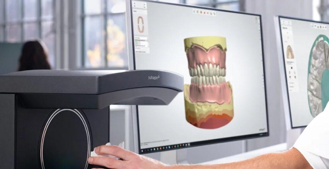 Best dental 3D scanner for labs 3Shape